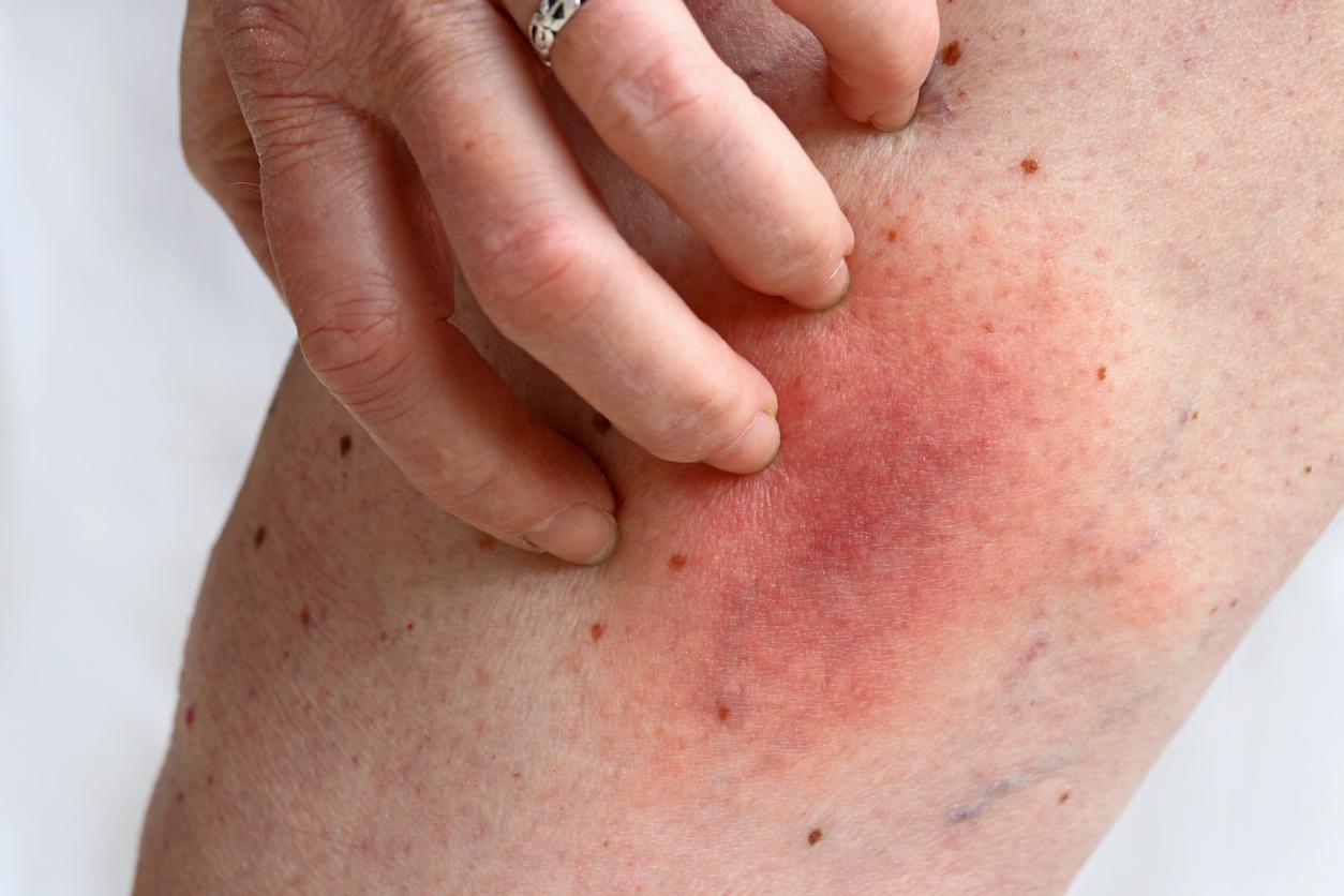 itchy leg varicose veins